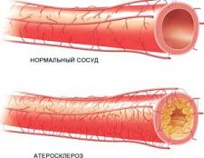 Що таке атеросклероз, и як з ним боротися?