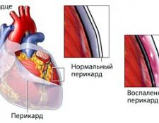 Симптоми и лікування перикардиту