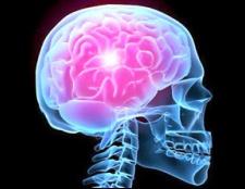 Як розвівається стовбурової інсульт, и Які методи его лікування?
