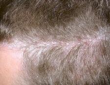 Псоріаз волосистої частини голови: симптоми та лікування