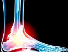 Симптоми и причини посттравматичного артрозу гомілковостопного суглобу