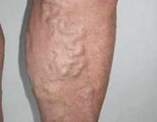 Варикоз на ногах: фото, симптоми, лікування, операція